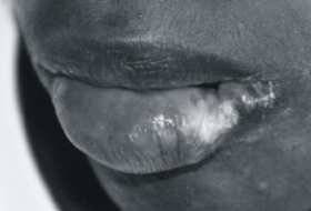 Example of scarring after self-injurious lip biting.