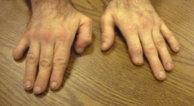 This figure shows examples of self-injurious finger biting.